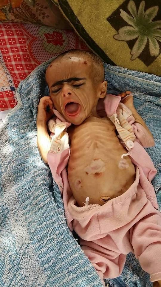 الصورة للطفل الذي أحاله الجوع الى كهل